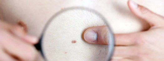 Many 'High-Risk' Americans Unconcerned About Skin Cancer: Poll 2