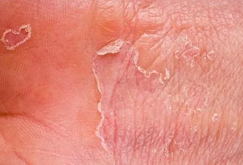 Is Catnip a Mosquito Repellent? 2