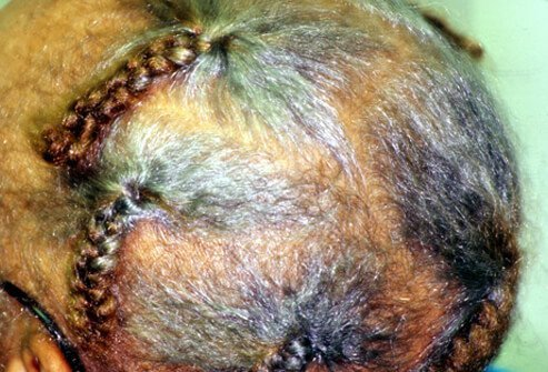 Traction Alopecia Picture Image On