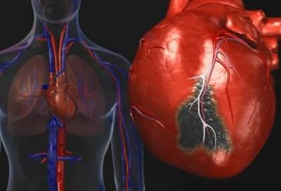 Резултат слика за heart attack