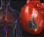 Heart Disease: Causes of a Heart Attack