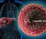 Hepatitis:A Visual Guide to Hepatitis