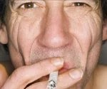 Smoking Effects:How Smoking Affects Your Looks and Life