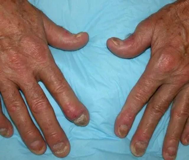 Picture Of Psoriatic Arthritis