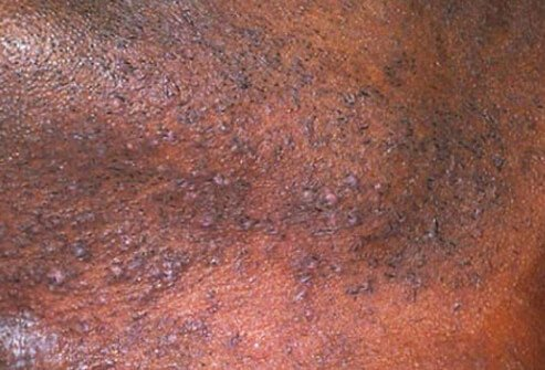 how to prevent red bumps when shaving the pubic area share the knownledge
