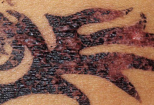 Henna Tattoo Reactions Picture Image On