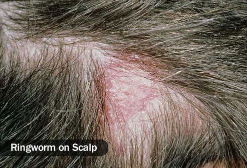 Thyroid disease, autoimmune disorders, and other conditions may contribute to hair loss.