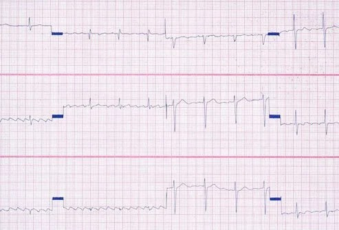 Heart palpitations are one possible symptom of vitamin B12 deficiency.
