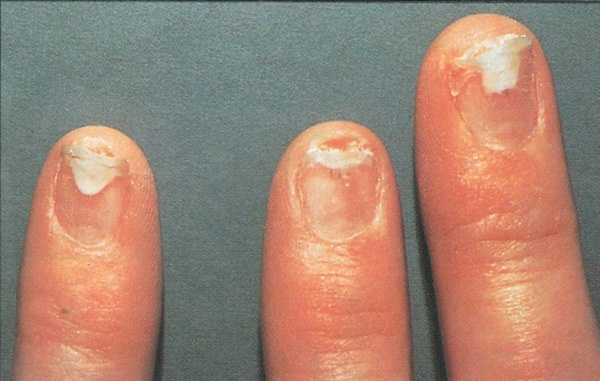Nail Fungus Acrylic Nails Pictures