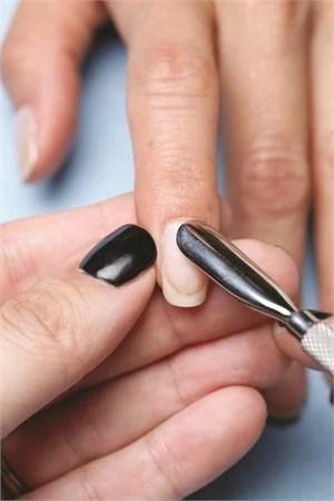1 Improper Nail Prep