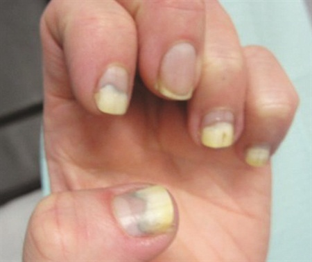 In This Month S Column Dr Stern Discusses The Most Mon Causes Of Onycholysis And Its Treatment