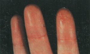 This Client Developed Allergies To Nail Glue Which Resulted In Blistering Rash On Her Fingertips The Same Thing Happened Photo Below