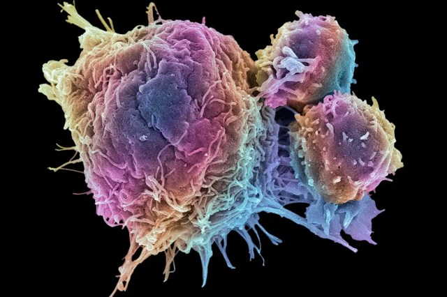 How cell therapy innovation is changing cancer treatment