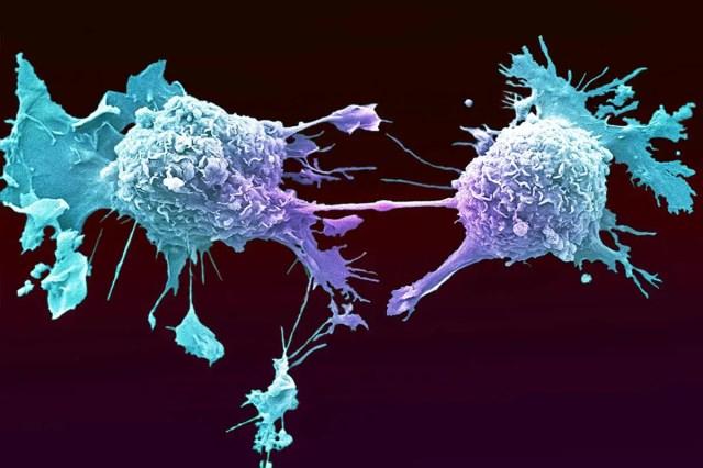 Lung cancer cells dividing