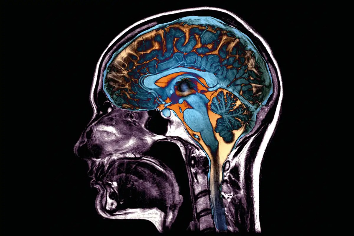 Coronavirus seems to reach the brain. What could this mean for us?