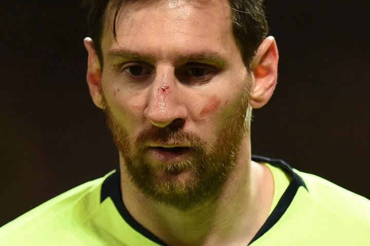 Messi after the coup.