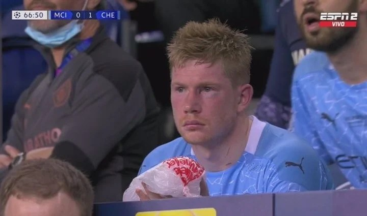 This is how De Bruyne's eye remained after the blow that took him out of the game.