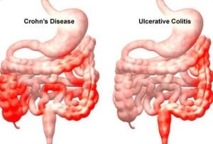 Crohn's Disease Causes, Symptoms, Diet