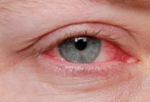 eye_diseases_and_cond_s9_eye_allergies.jpg