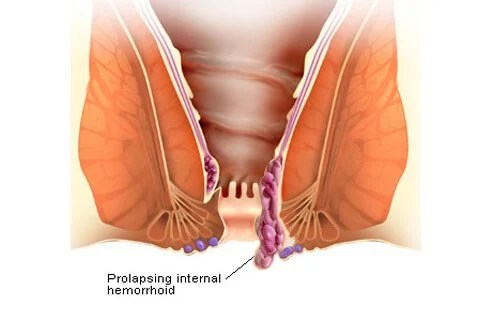 Hemorrhoids prolapse when their blood vessels swell and extend from their location in the rectum through the anus.