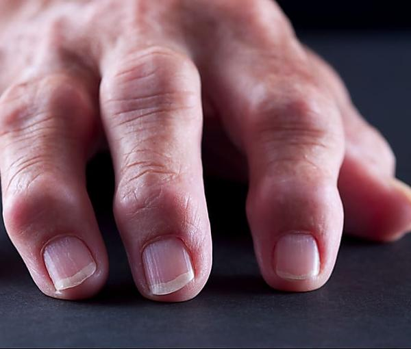 Find Out What Really Causes Psoriatic Arthritis