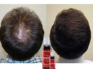 Handmade Oil in Kerala to prevent and treat excessive hair loss