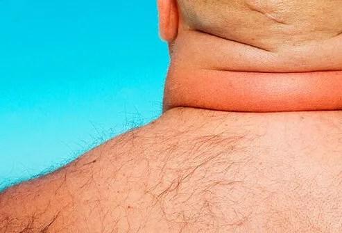 Back neck of an overweight man.