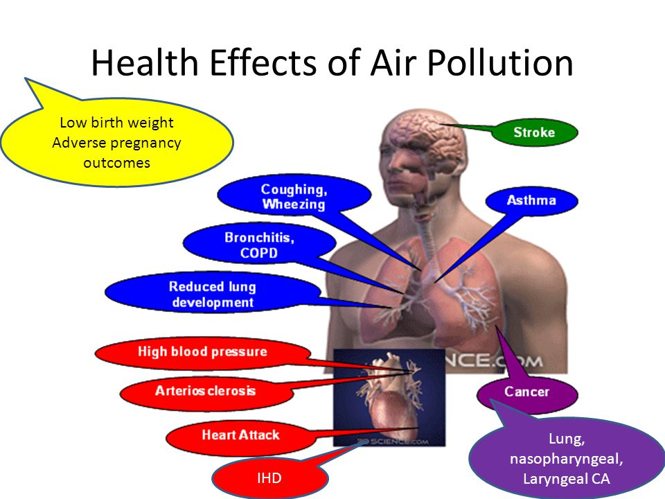 Image result for air pollution and health effects
