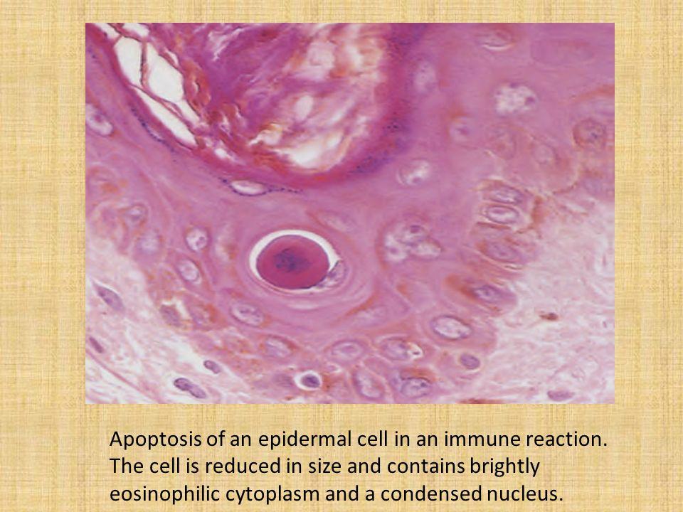 Image result for eosinophilic cytoplasm apoptosis