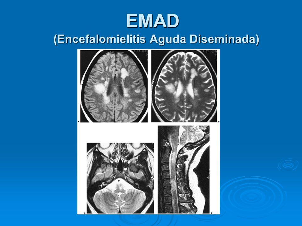 Resultado de imagen de Encefalomielitis aguda diseminada