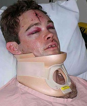 Justin Crosby: broke his neck when he fell at Sydney pub Jacksons on George.