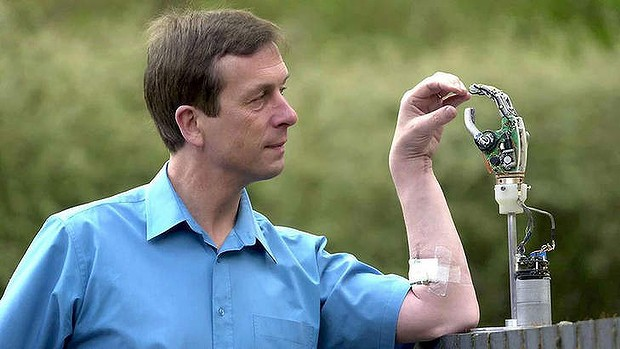 Contact: Professor Kevin Warwick and his microchipped arm.