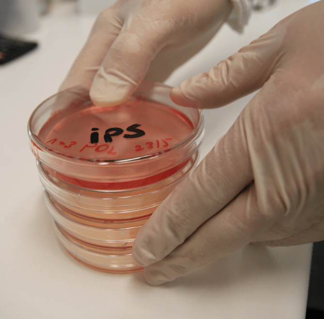 Induced pluripotent stem cells were a huge breakthrough, but can we do better?