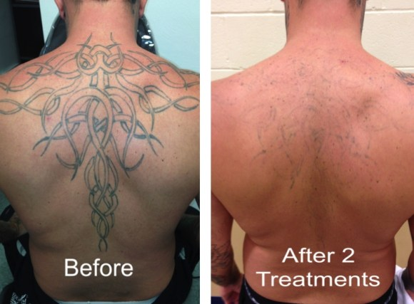 Disappearing Ink Laser Tattoo Removal Disappearing Ink Laser ...