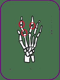 artrosis copia.png