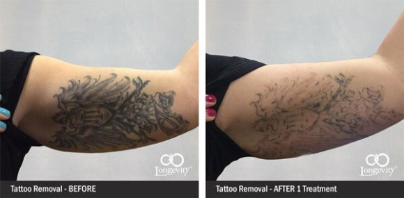 Tattoo Removal OKC | up to 50% OFF JULY| #1 Rated Med Spa ...