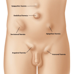 Hernia Surgery Dr Nange