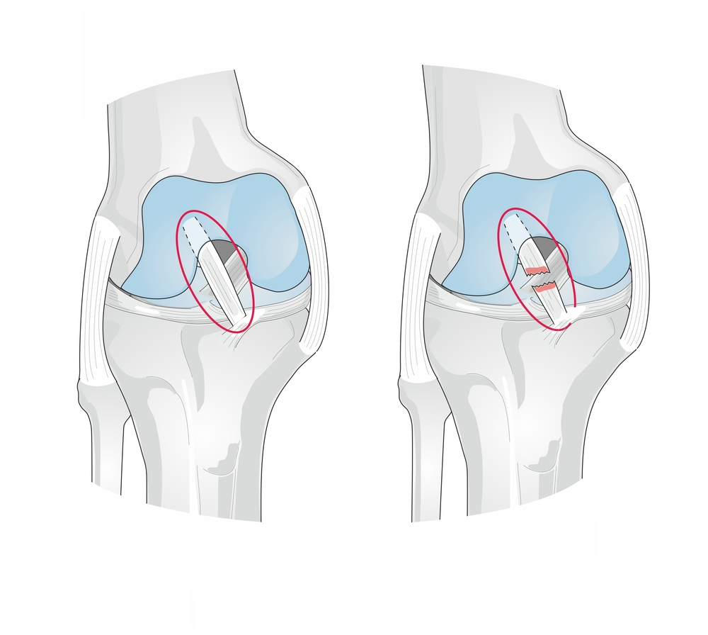 Anatomy of the knee showing a torn anterior cruciate ligament.