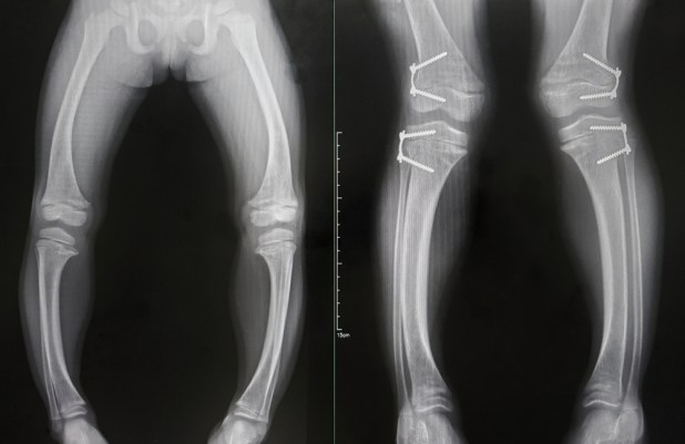 X-rays of the legs of people with rickets.