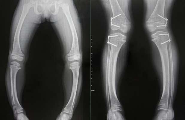 الأشعة السينية لسيقان الأشخاص المصابين بالكساح.