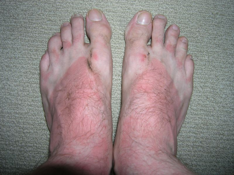 A man's sunburnt feet with white lines showing where the skin was protected by his thong straps.