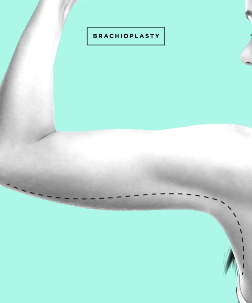 arm lift aka brachioplasty the surgery tightens loose or sagging skin