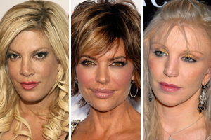 10 Things That Can Go Wrong with Plastic Surgery