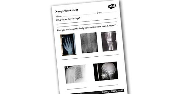 X Ray Worksheet