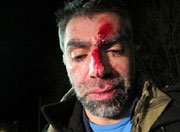 Usama Alshaibi with a bloody face after being beaten