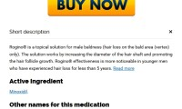 Buy Minoxidil Online With A Prescription – mercubenua.com