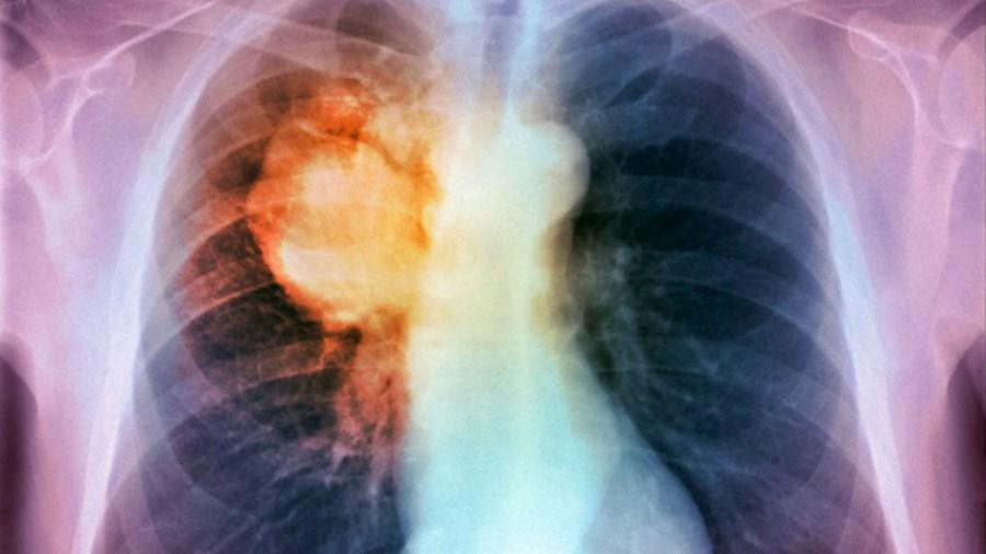 Tumore al polmone (foto: Science Photo Library/Corbis)
