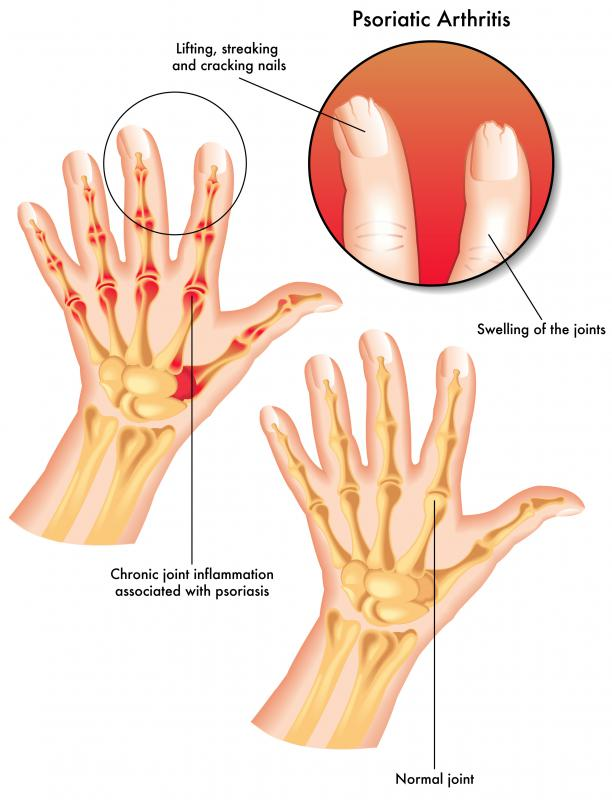 Psoriatic Arthritis Is Often Acpanied By Nail Disease