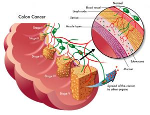 What Is a Colon Neoplasm? (with pictures)