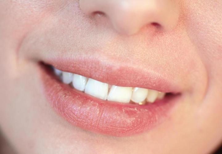 Herpes? Sun Spots? Upper Lip Lining Feels Sore.? 1